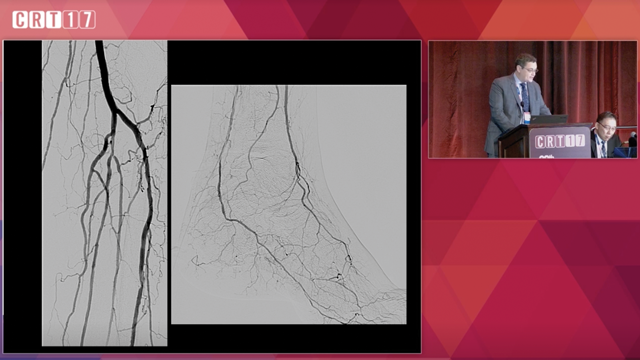 Techniques For Alternative Access In Endovascular Intervention - Ehrin Armstrong
