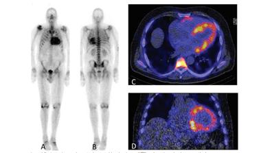 Cardiac Transthyretin-derived Amyloidosis
