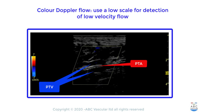 Calcified occlusion of the posterior tibial artery: tips for ultrasound operators