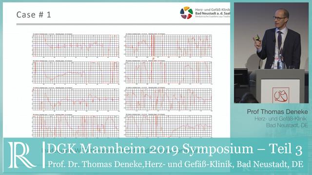 DGK 2019: Nach der Verordnung - Prof. Dr. Thomas Deneke