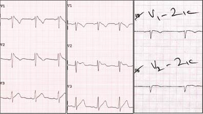 Current Controversies and Challenges in Brugada Syndrome