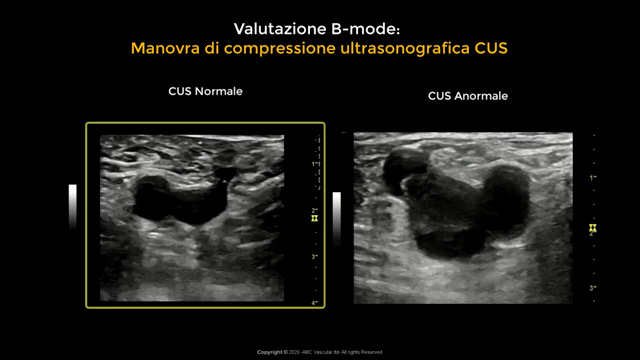 Manovra di compressione ultrasonografica per la diagnosi di trombosi venosa profonda (CUS)