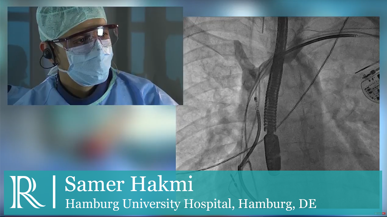 Percutaneous Lead Extraction - Dr. Samer Hakmi