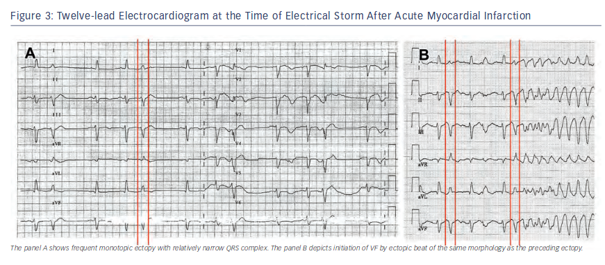 Twelve-lead Electrocardiogram at the Time of Electrical Storm
