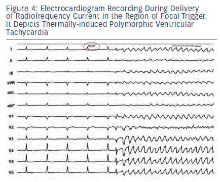 Electrocardiogram Recording During Delivery of Radiofrequency
