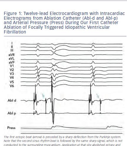 Twelve-lead Electrocardiogram with Intracardiac Electrograms