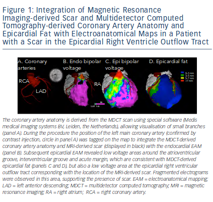 Integration of Magnetic Resonance