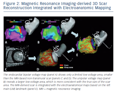 Magnetic Resonance Imaging-derived 3D Scar Reconstruction
