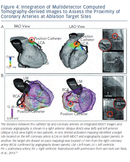 Integration of Multidetector Computed Tomography-derived Images