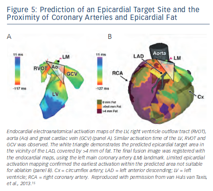 Prediction of an Epicardial Target Site