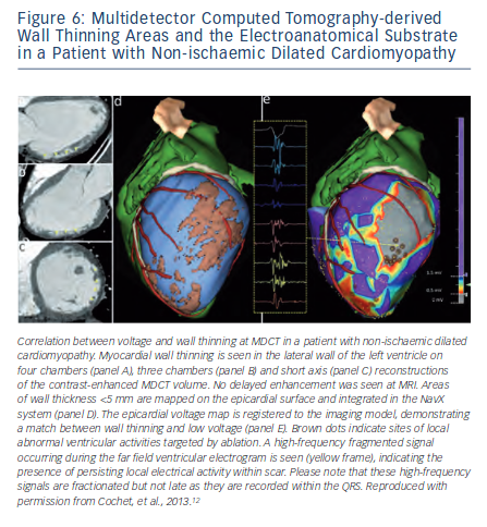 Multidetector Computed Tomography-derived Wall Thinning Areas