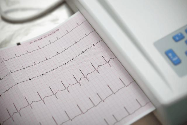 Atrial Fibrillation Ablation