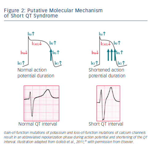 Putative Molecular Mechanism of Short QT Syndrome
