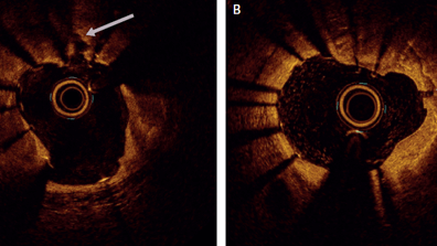 Calcified Lesion Assessment and Intervention in Complex Percutaneous Coronary Intervention: Overview of Angioplasty, Atherectomy, and Lithotripsy
