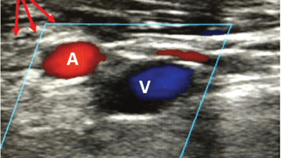 Emerging Role of Large-bore Percutaneous Axillary Vascular Access: A Step-by-step Guide