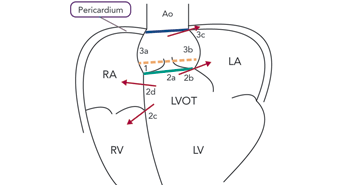 Sites and Potential Communications of Annular Rupture