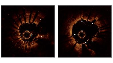 Coronary Intravascular Lithotripsy System