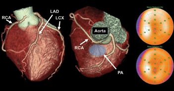 Diagnosis and Management of Anomalous Coronary Arteries with a Malignant Course