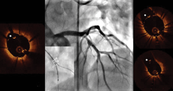 OCT Assessment of Side-Branch Rewiring After Stent Implantation