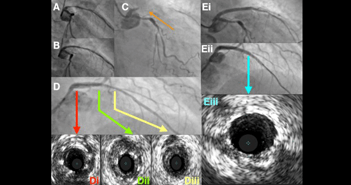 Contemporary Management of Stent Failure: Part One