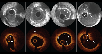 Value of Intracoronary Imaging and Coronary Physiology When Treating Calcified Lesions