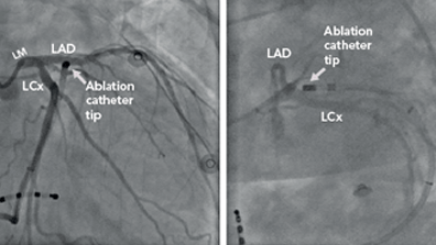Hybrid Catheter-Based and Surgical Techniques