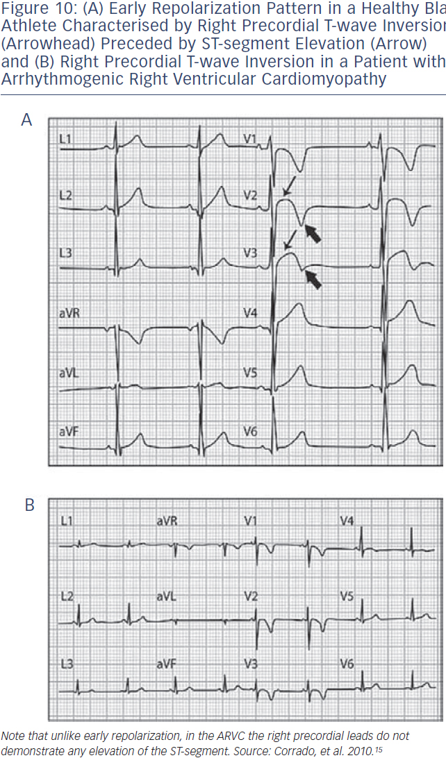 (A) Repolarization Pattern in a Healthy Athlete (B) T-wave Inversion in a Patient