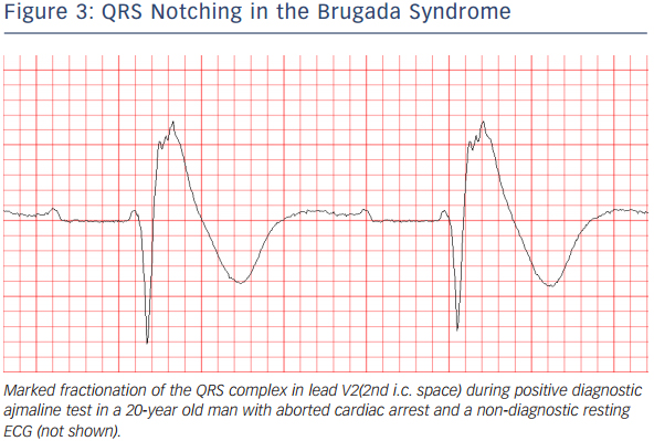 Figure 3: QRS Notching in the Brugada Syndrome