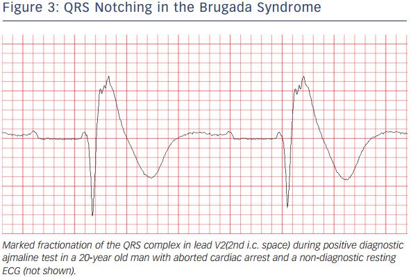 Electrophysiological Studies Do Predict Sudden Cardiac ...
