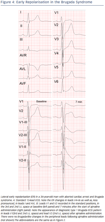 Figure 4: Early Repolarisation in the Brugada Syndrome