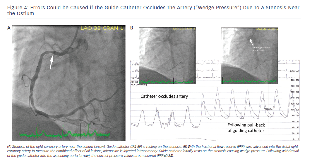 "Figure 4: Errors Could be Caused if the Guide Catheter Occludes the Artery (""Wedge Pressure"") Due to a Stenosis Near<br /> the Ostium"