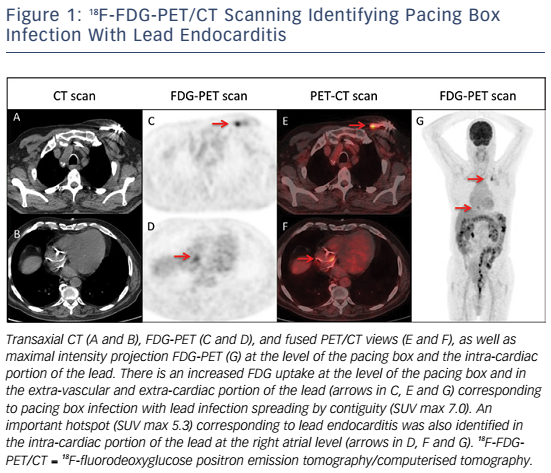 Figure 1: 18F-FDG-PET/CT Scanning Identifying Pacing Box Infection With Lead Endocarditis