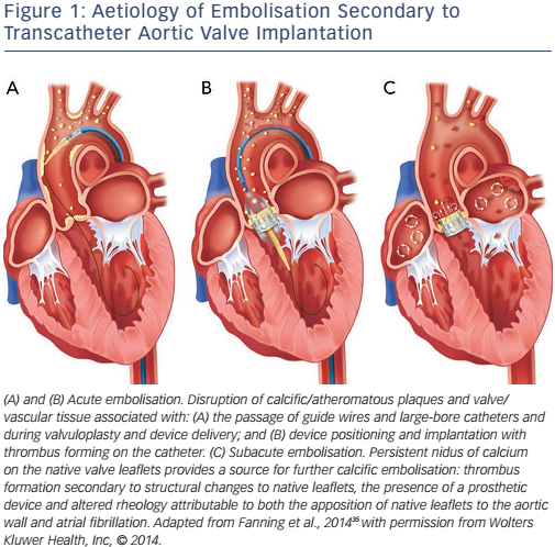 Figure 1: Aetiology of Embolisation Secondary to Transcatheter Aortic Valve Implantation