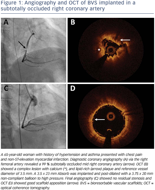Figure 1: Angiography and OCT of BVS implanted in a subtotally occluded right coronary artery