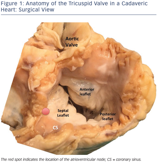 Figure 1: Anatomy of the Tricuspid Valve in a Cadaveric Heart: Surgical View