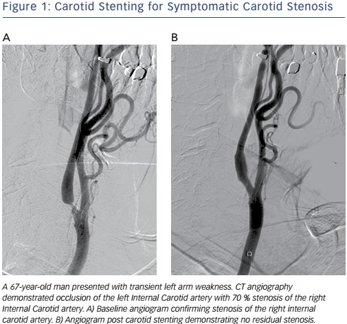 Figure 1: Carotid Stenting for Symptomatic Carotid Stenosis