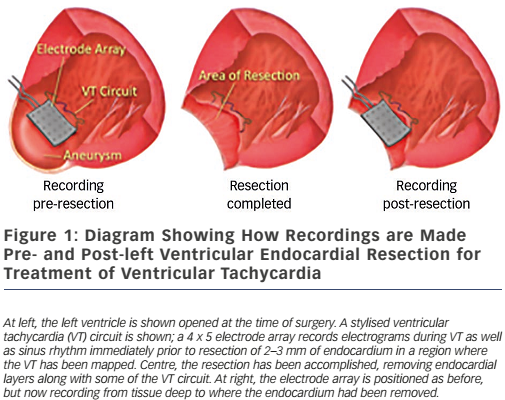 Figure 1: Diagram Showing How Recordings are Made Pre- and Post-left Ventricular Endocardial Resection for Treatment of Ventricular Tachycardia