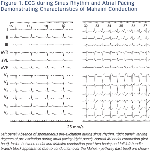 Figure 1: ECG during Sinus Rhythm and Atrial Pacing Demonstrating Characteristics of Mahaim Conduction
