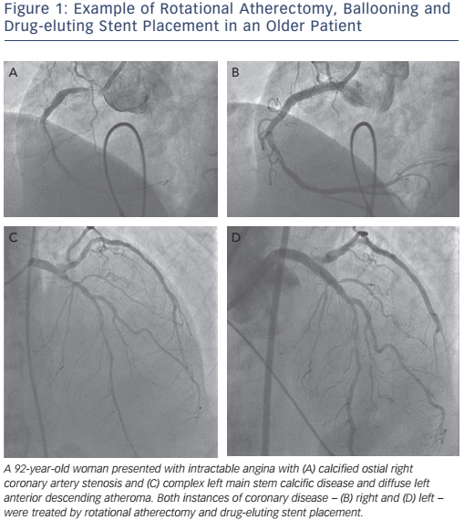Figure 1: Example of Rotational Atherectomy, Ballooning and Drug-eluting Stent Placement in an Older Patient