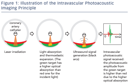 Figure 1: Illustration of the Intravascular Photoacoustic Imaging Principle