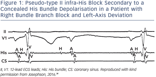 Figure 1: Pseudo-type II infra-His Block Secondary to a Concealed His Bundle Depolarisation in a Patient with Right Bundle Branch Block and Left-Axis Deviation