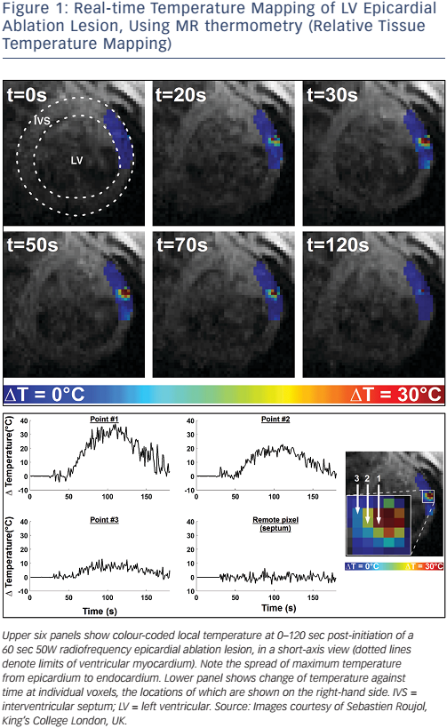 Figure 1: Real-time Temperature Mapping of LV Epicardial Ablation Lesion, Using MR thermometry (Relative Tissue Temperature Mapping)
