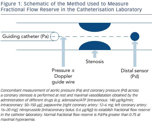Figure 1: Schematic of the Method Used to Measure Fractional Flow Reserve in the Catheterisation Laboratory