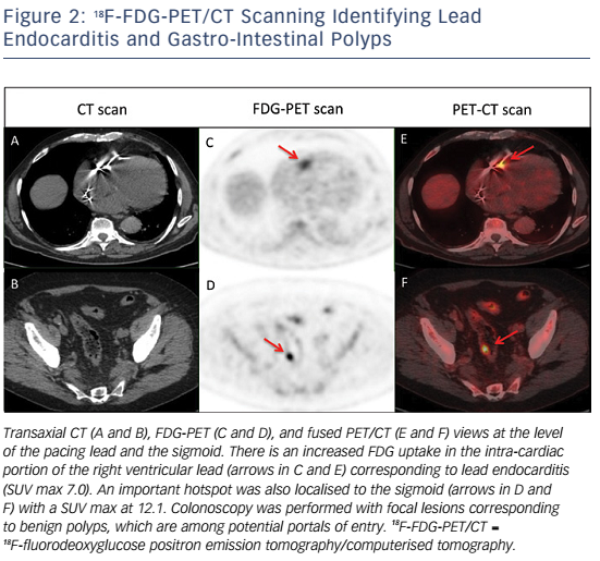 Figure 2: 18F-FDG-PET/CT Scanning Identifying Lead Endocarditis and Gastro-Intestinal Polyps