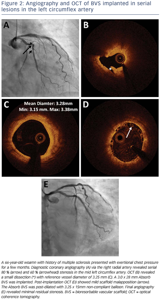 Figure 2: Angiography and OCT of BVS implanted in serial lesions in the left circumflex artery