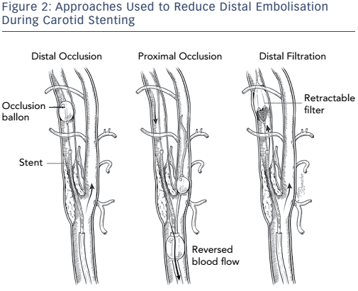 Figure 2: Approaches Used to Reduce Distal Embolisation During Carotid Stenting