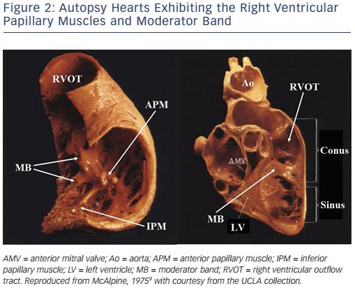 Catheter Ablation Of Idiopathic Ventricular Arrhythmias