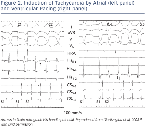 Figure 2: Induction of Tachycardia by Atrial (left panel) and Ventricular Pacing (right panel)