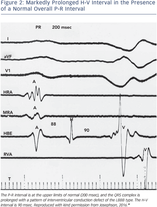 Figure 2: Markedly Prolonged H-V Interval in the Presence of a Normal Overall P-R Interval