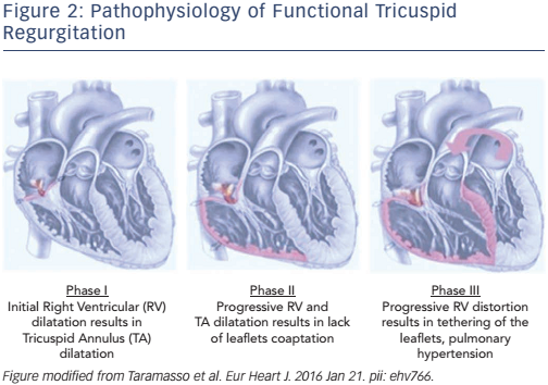 Figure 2: Pathophysiology of Functional Tricuspid Regurgitation
